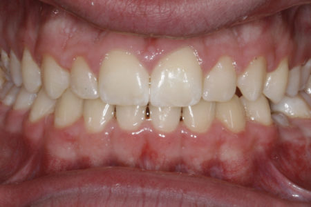 Deep overbite - Lower front teeth bite into palate After